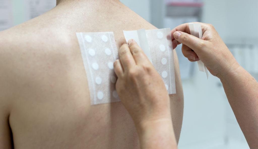 Epikutantest bei Hautarzt Dr. Kirschner