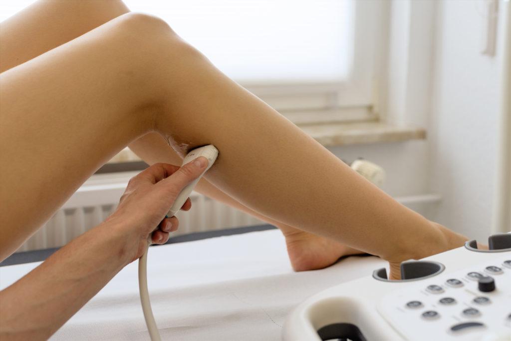Ultraschalluntersuchung