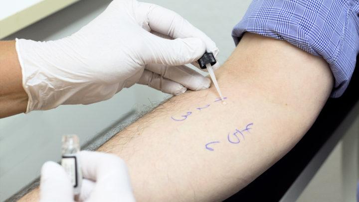 Prick-Test zur Allergie-Diagnostik bei Hautarzt Dr. Kirschner