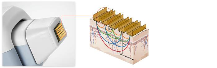 Elektrode und Wirkprinzip