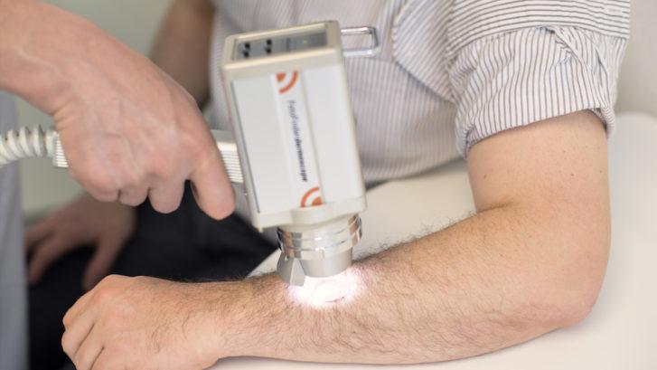 Hautkrebsvorsorge mit Video-Auflichtmikroskopie
