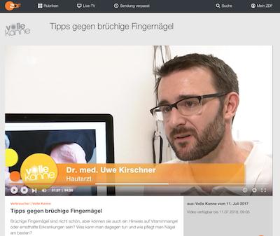 Dr. Kirschner im ZDF-Interview zu brüchigen Nägeln