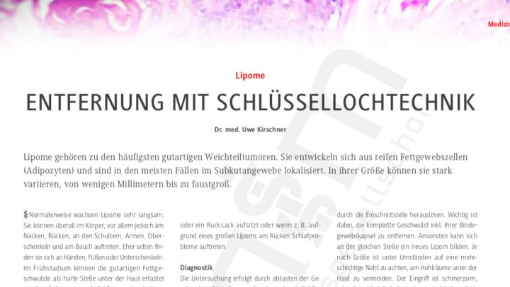 Lipom Entfernung in Mainz mit Schlüssellochtechnik
